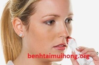 chảy máu mũi một bên